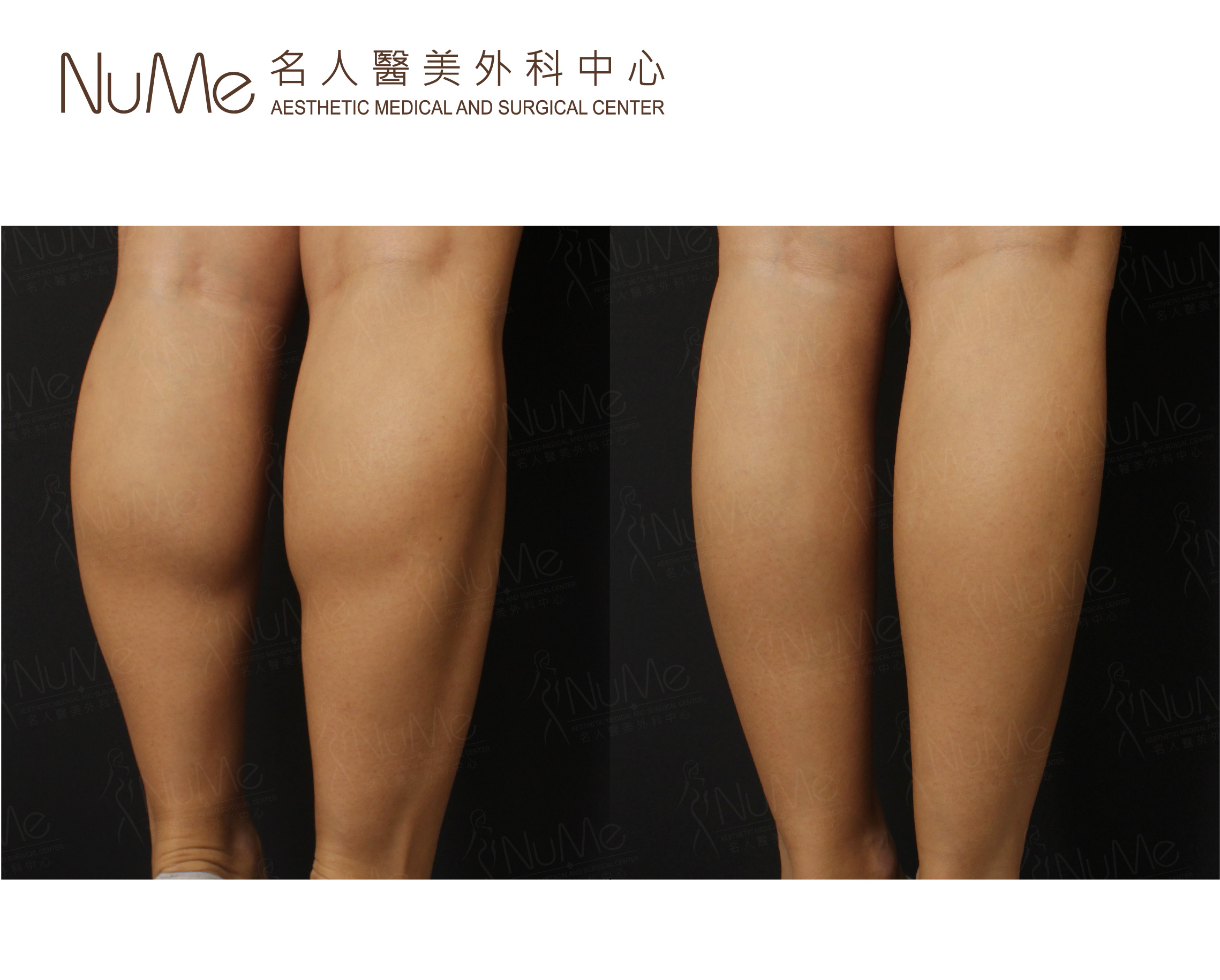 NuMe Facebook Before & After Photos (Comments) - 瘦肩腿-04.jpg