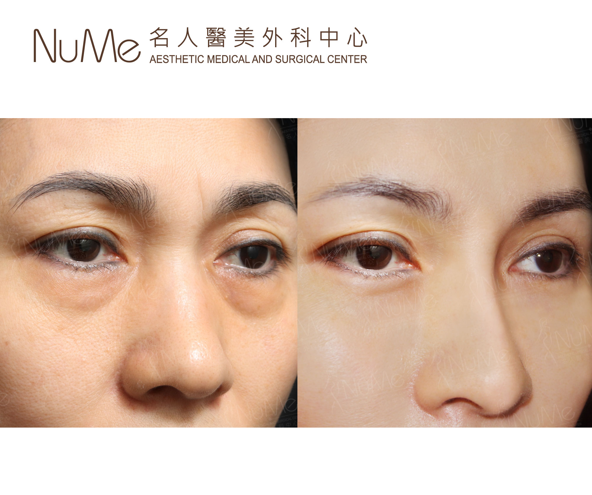 NuMe-Facebook-Before-After-Photos-Comments-素人李嘉欣-10.jpg