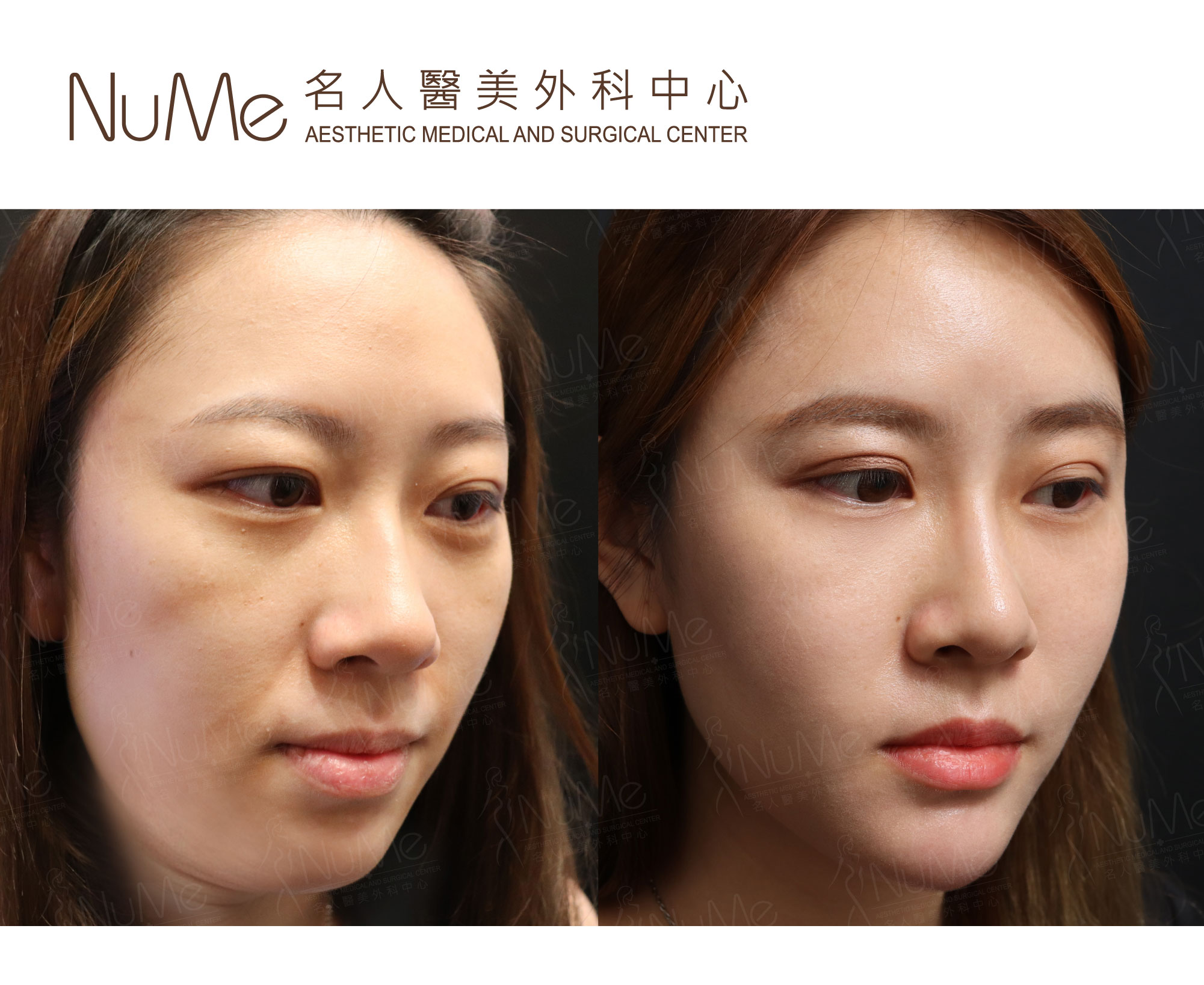 NuMe-Facebook-Before-After-Photos-Comments-Double-Chin-02.jpg