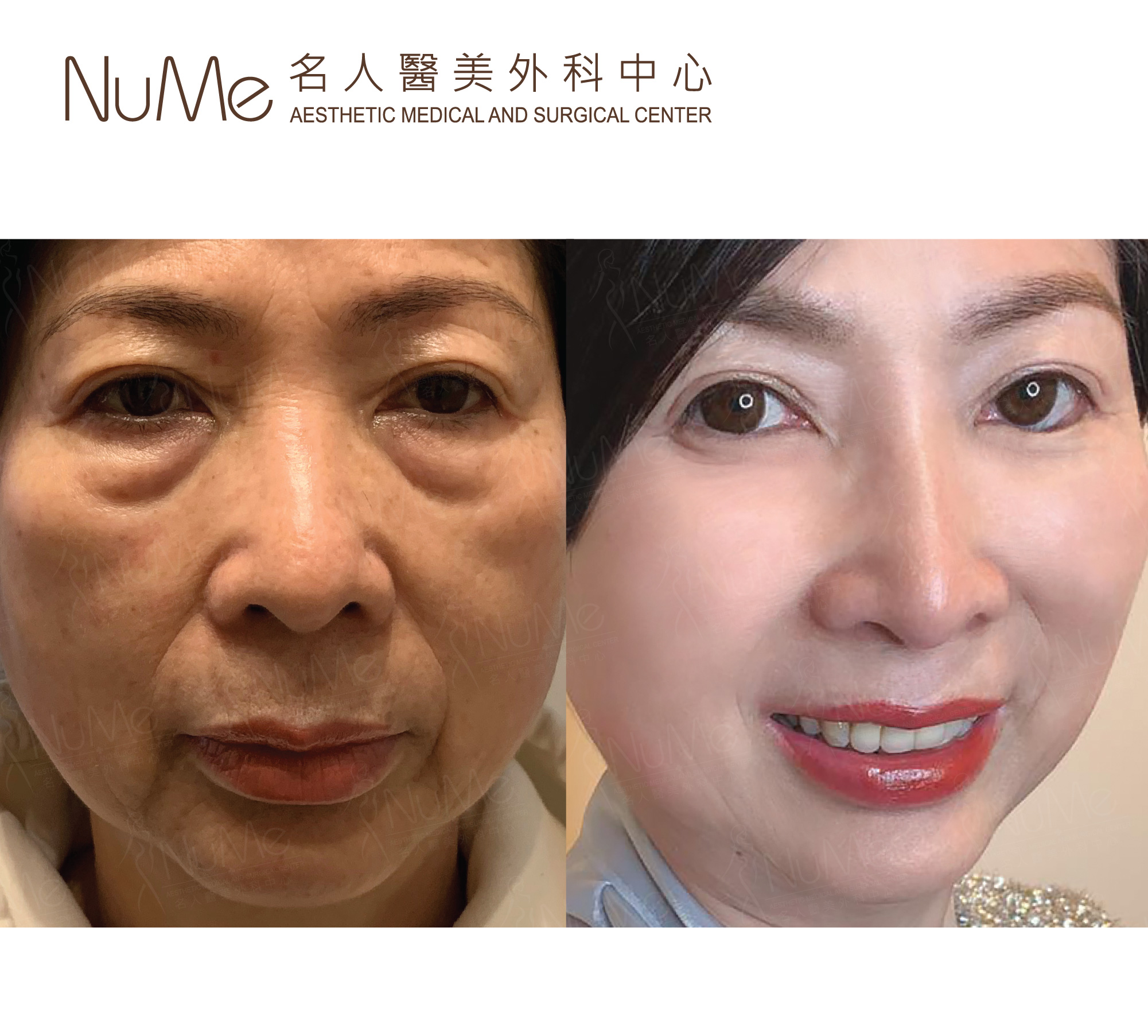 NuMe-Facebook-Before-After-Photos-Comments-Eyebags-05.jpg
