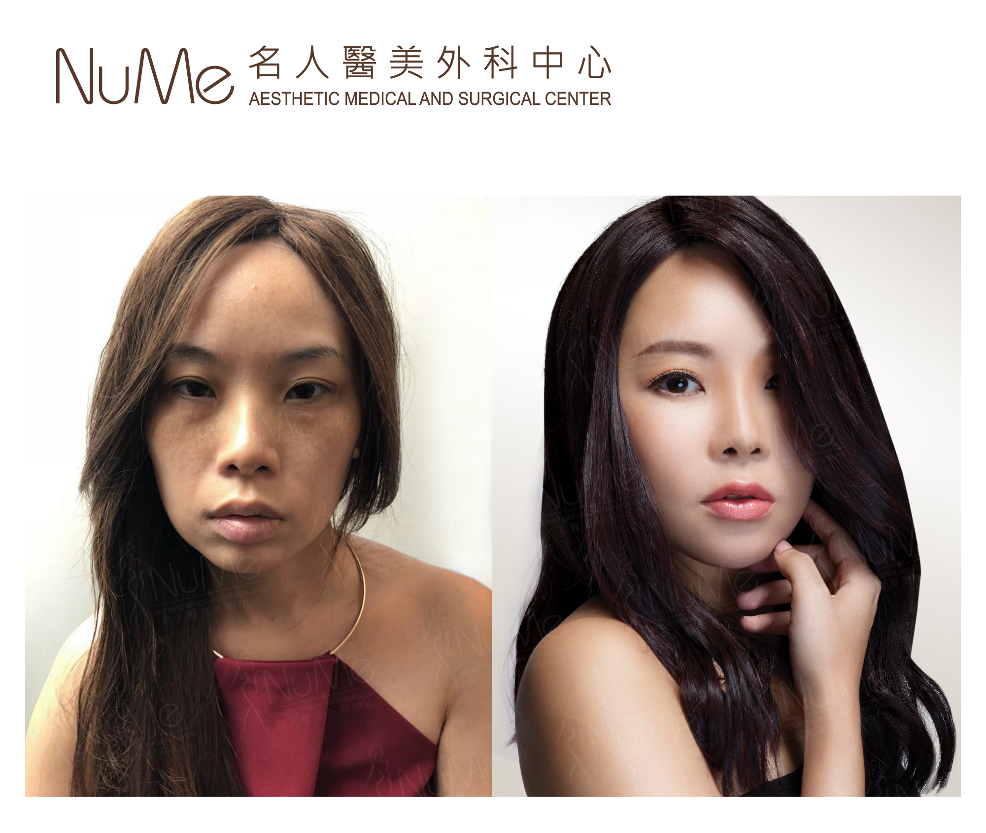 NuMe-Facebook-Before-After-Photos-Comments-Gigi-Ms-Li-03.jpg