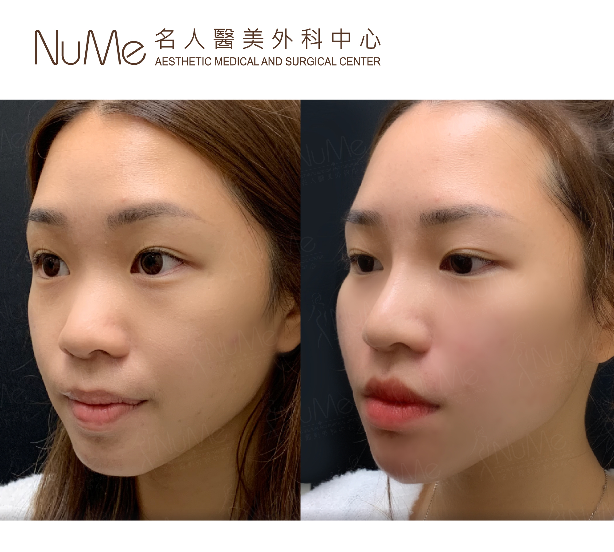 NuMe-Facebook-Before-After-Photos-Comments-Natalie-01.jpg
