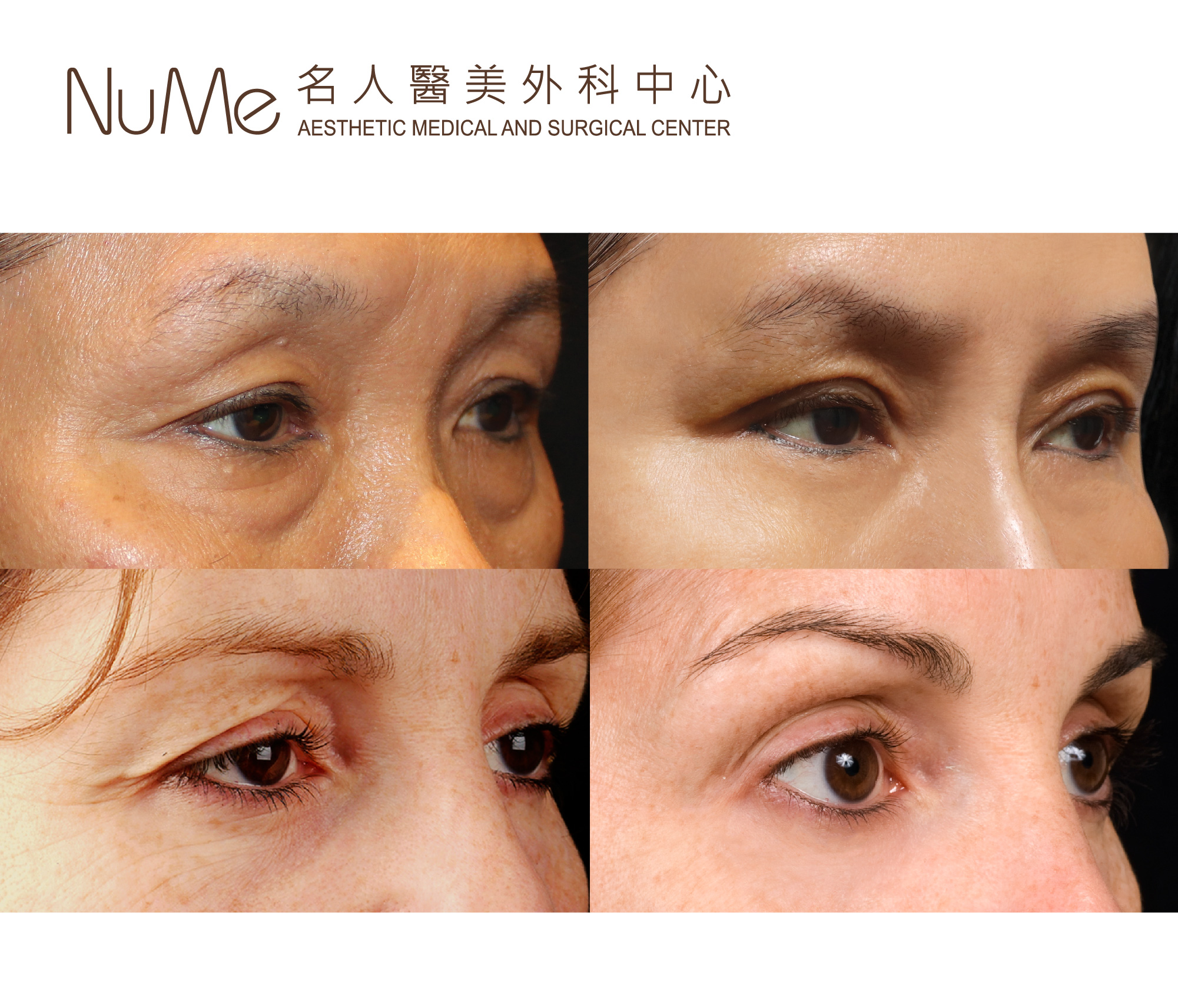 NuMe-Facebook-Before-After-Photos-Comments-Thermage-Eyes-17.jpg