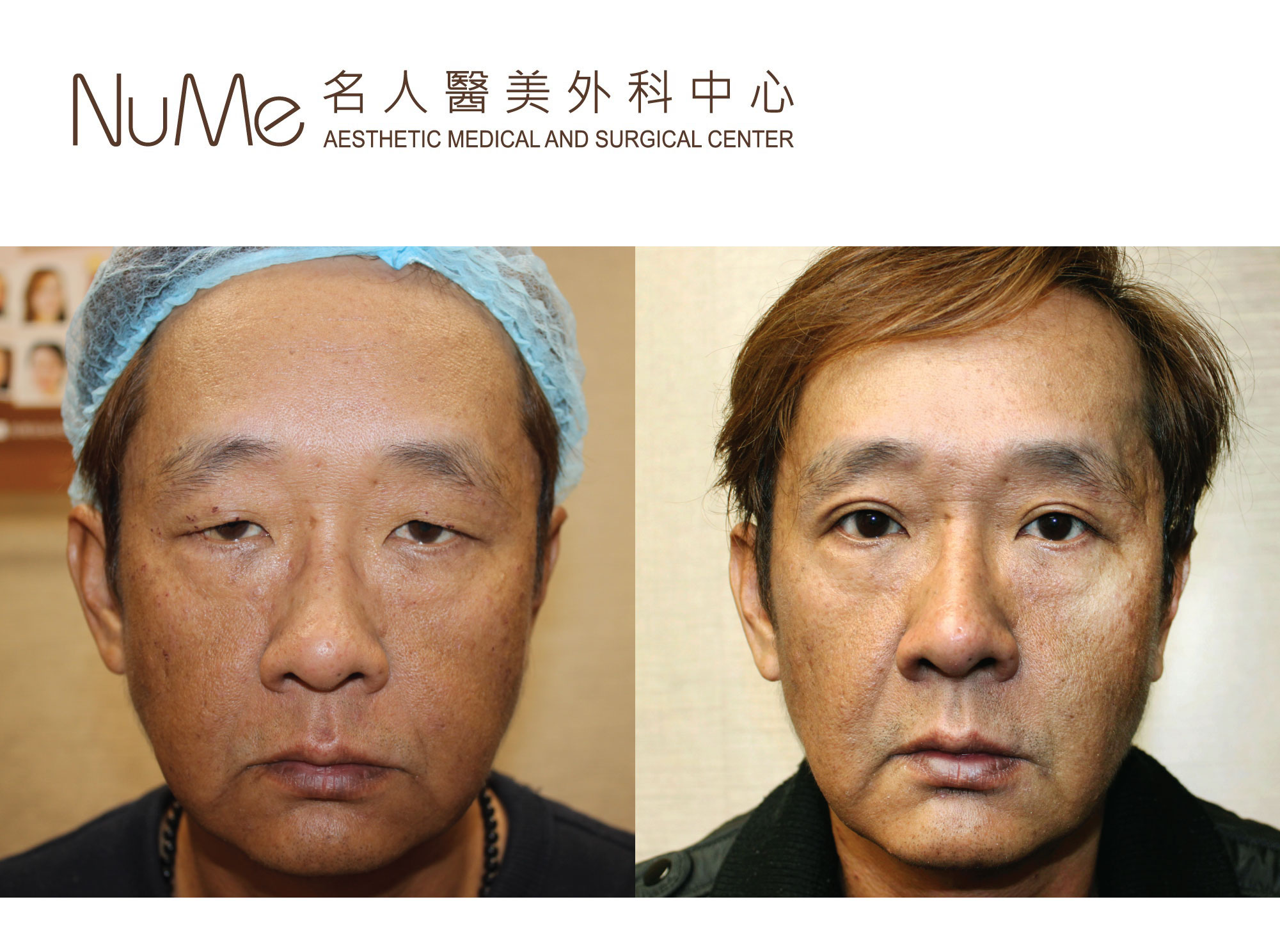 before_after_photo_王喜_眼.jpg