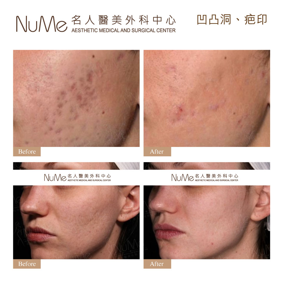 xNuMe-Facebook-Before-After-Photos-Comments-PicoSure-26.jpeg